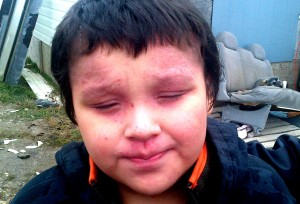Boy with facial rash, Attawapiskat